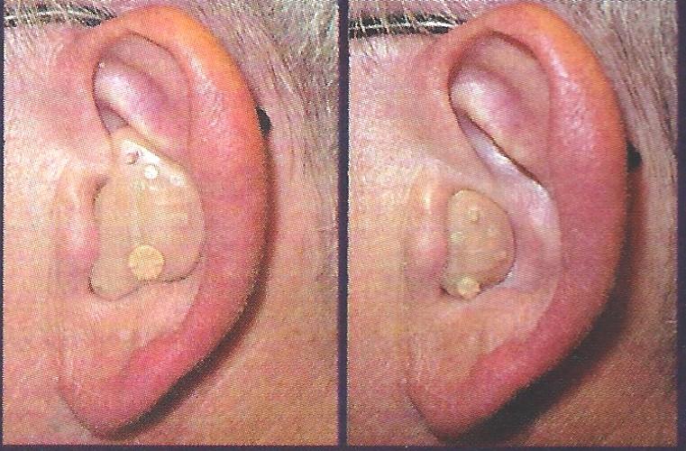 full-shell-half-shell-ITE-hearing-aid